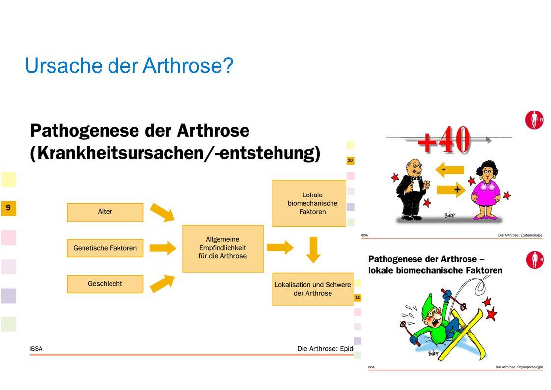 Ursache der Arthrose?