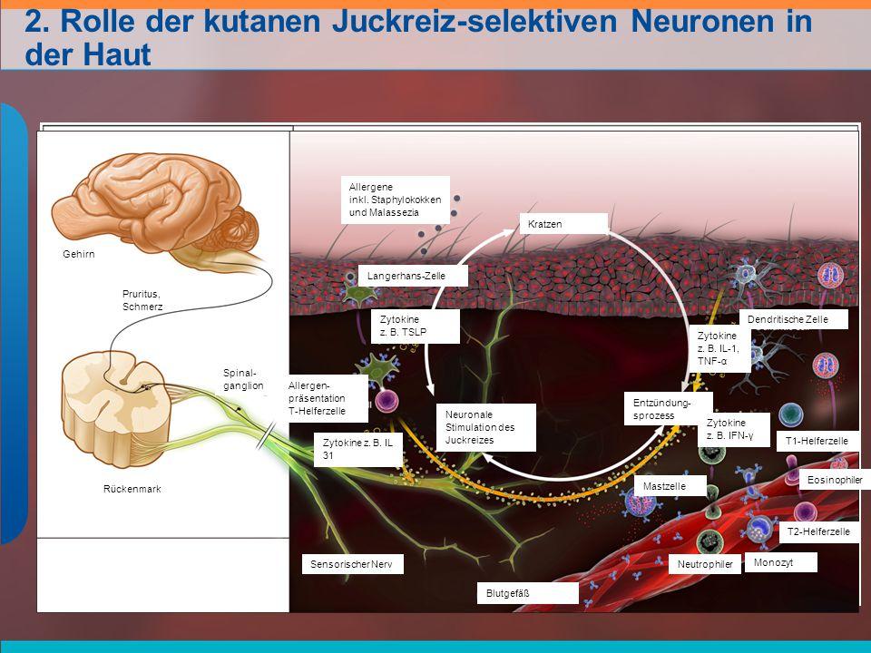 2. Rolle der kutanen Juckreiz-selektiven Neuronen in der Haut Gehirn Pruritus, Schmerz Spinal- ganglion Rückenmark Allergene inkl. Staphylokokken und
