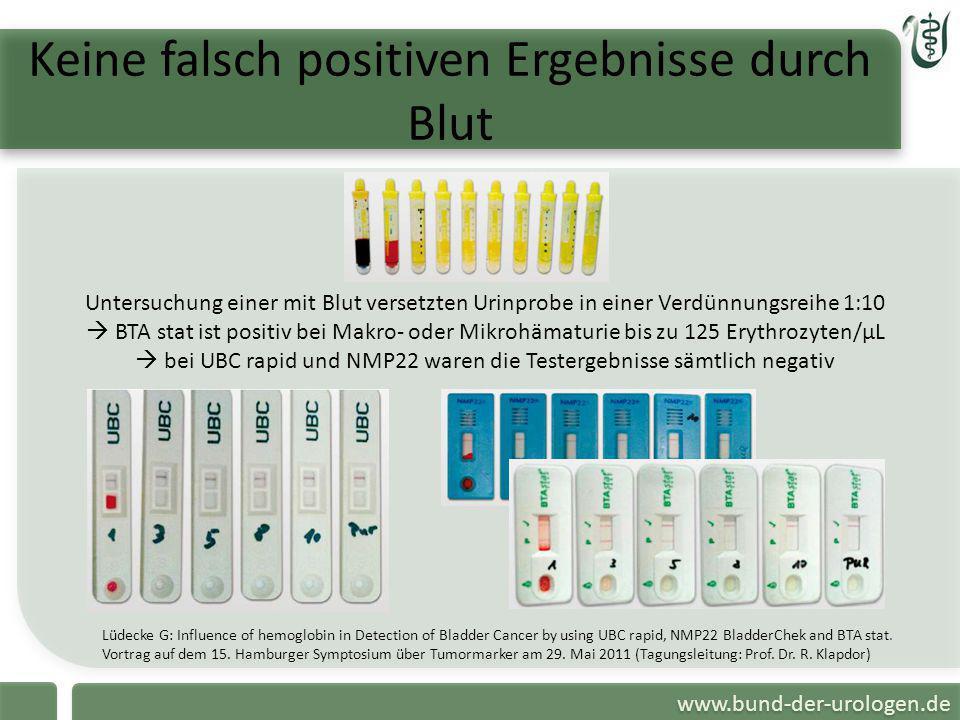 www.bund-der-urologen.de Keine falsch positiven Ergebnisse durch Blut Untersuchung einer mit Blut versetzten Urinprobe in einer Verdünnungsreihe 1:10