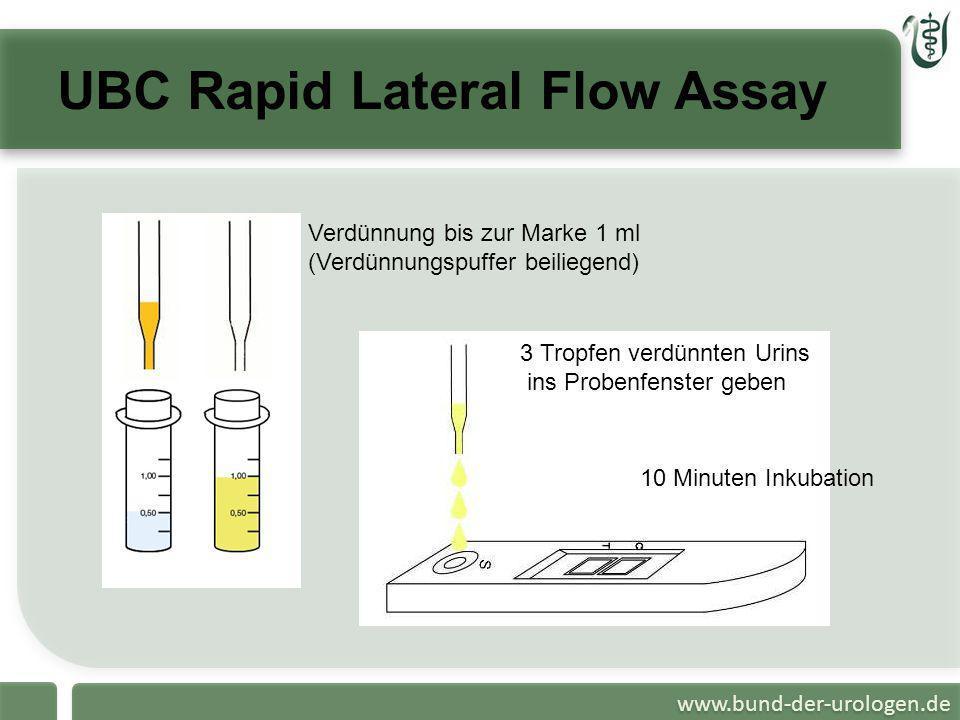 www.bund-der-urologen.de UBC Rapid Lateral Flow Assay 3 Tropfen verdünnten Urins ins Probenfenster geben Verdünnung bis zur Marke 1 ml (Verdünnungspuf