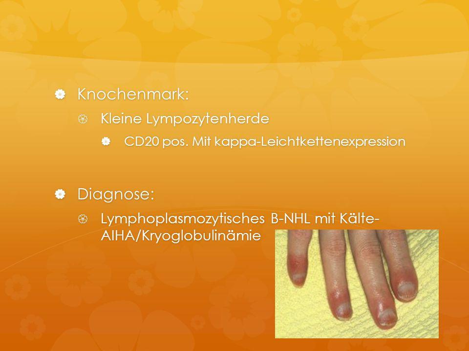  Knochenmark:  Kleine Lympozytenherde  CD20 pos. Mit kappa-Leichtkettenexpression  Diagnose:  Lymphoplasmozytisches B-NHL mit Kälte- AIHA/Kryoglo