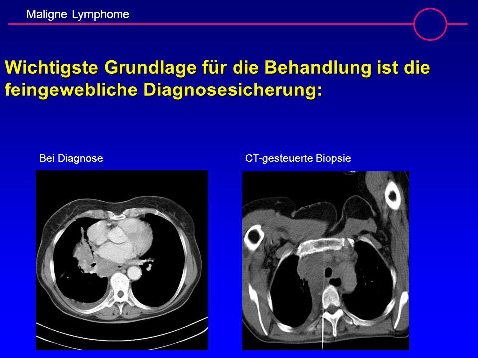 Maligne Lymphome Wichtigste Grundlage für die Behandlung ist die feingewebliche Diagnosesicherung: Bei Diagnose CT-gesteuerte Biopsie