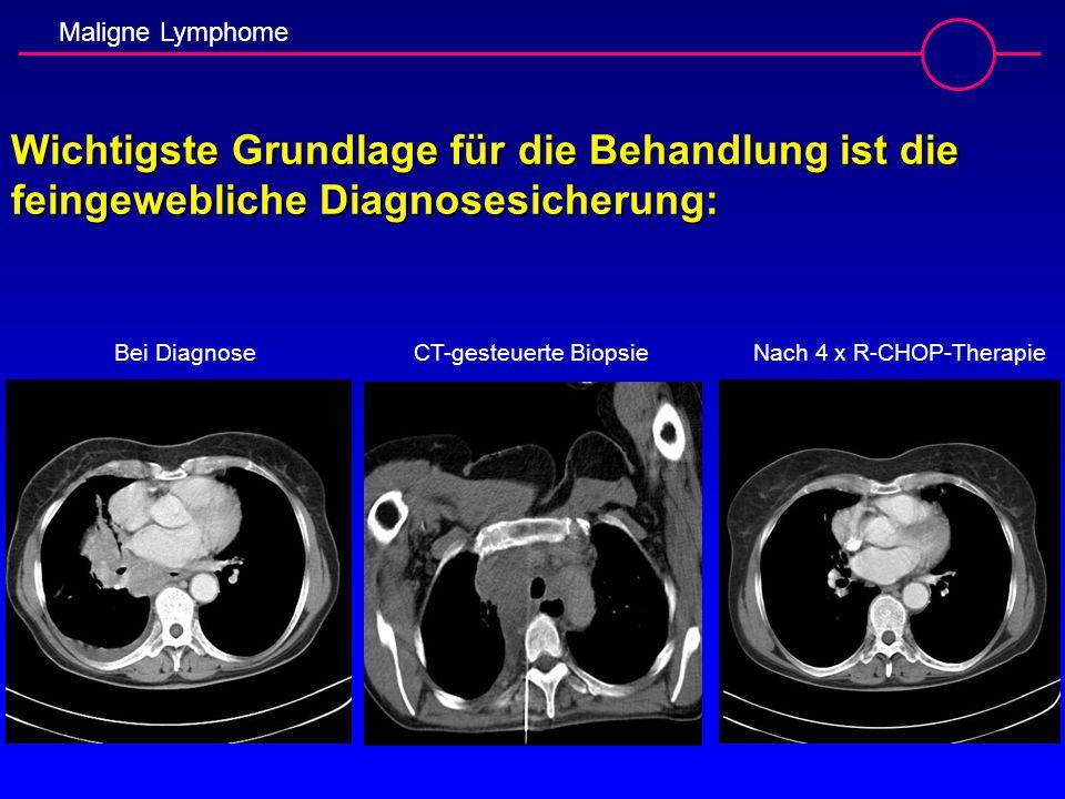 Maligne Lymphome Wichtigste Grundlage für die Behandlung ist die feingewebliche Diagnosesicherung: Bei Diagnose CT-gesteuerte BiopsieNach 4 x R-CHOP-T