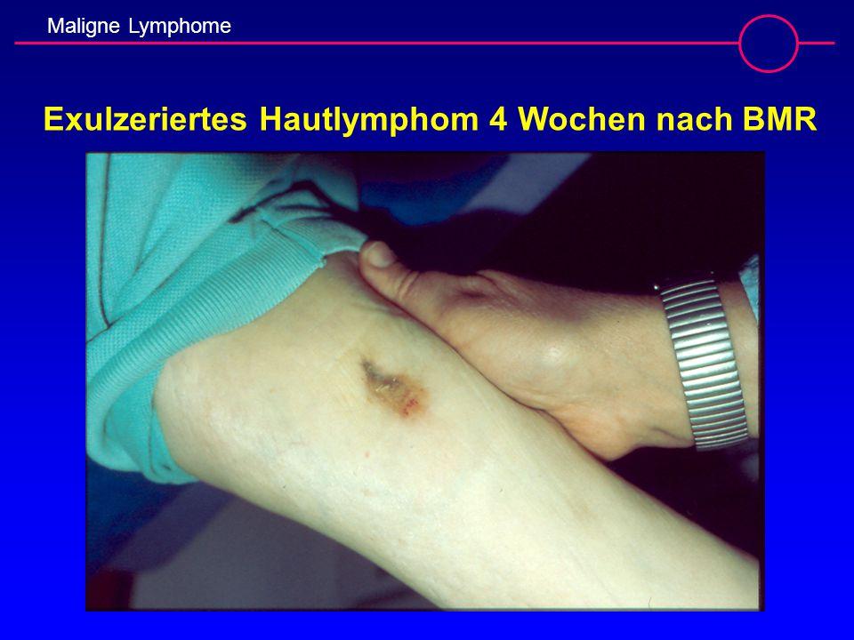 Maligne Lymphome Exulzeriertes Hautlymphom 4 Wochen nach BMR