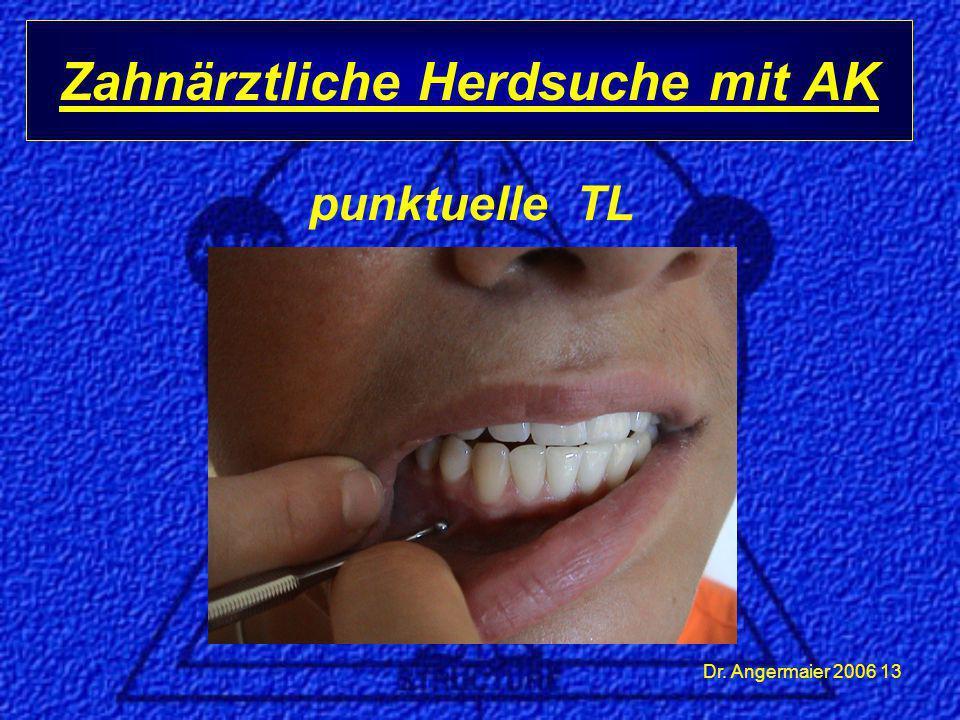 Dr. Angermaier 2006 13 Zahnärztliche Herdsuche mit AK punktuelle TL