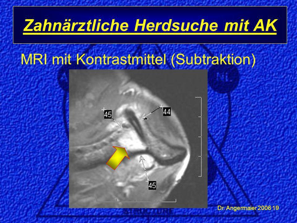 Dr. Angermaier 2006 19 MRI mit Kontrastmittel (Subtraktion) Zahnärztliche Herdsuche mit AK