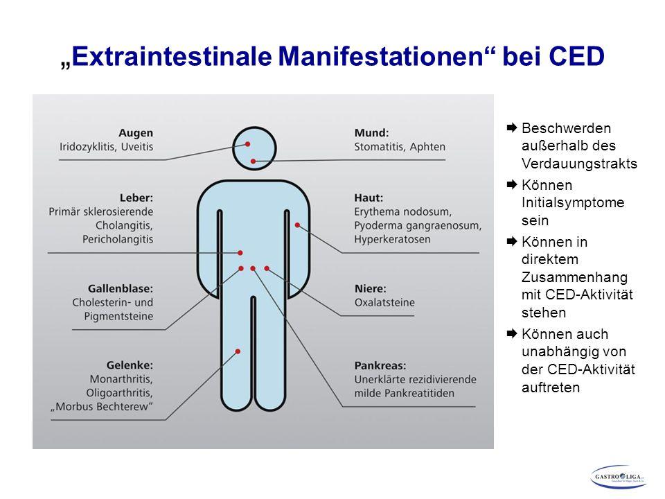 """"""" Extraintestinale Manifestationen bei CED  Beschwerden außerhalb des Verdauungstrakts  Können Initialsymptome sein  Können in direktem Zusammenhang mit CED-Aktivität stehen  Können auch unabhängig von der CED-Aktivität auftreten"""