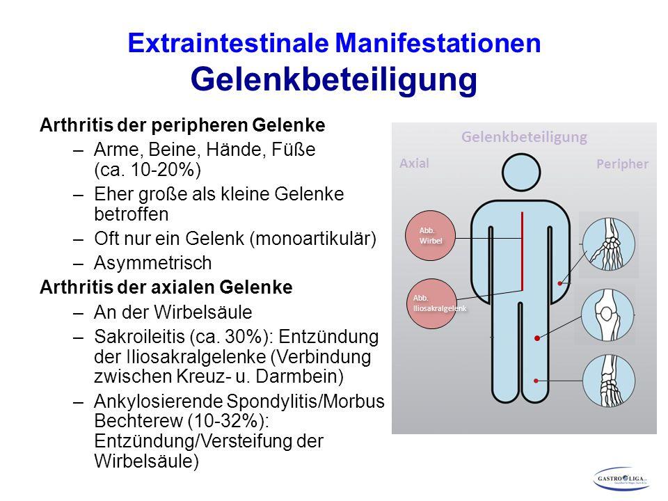 Extraintestinale Manifestationen Gelenkbeteiligung Arthritis der peripheren Gelenke –Arme, Beine, Hände, Füße (ca.