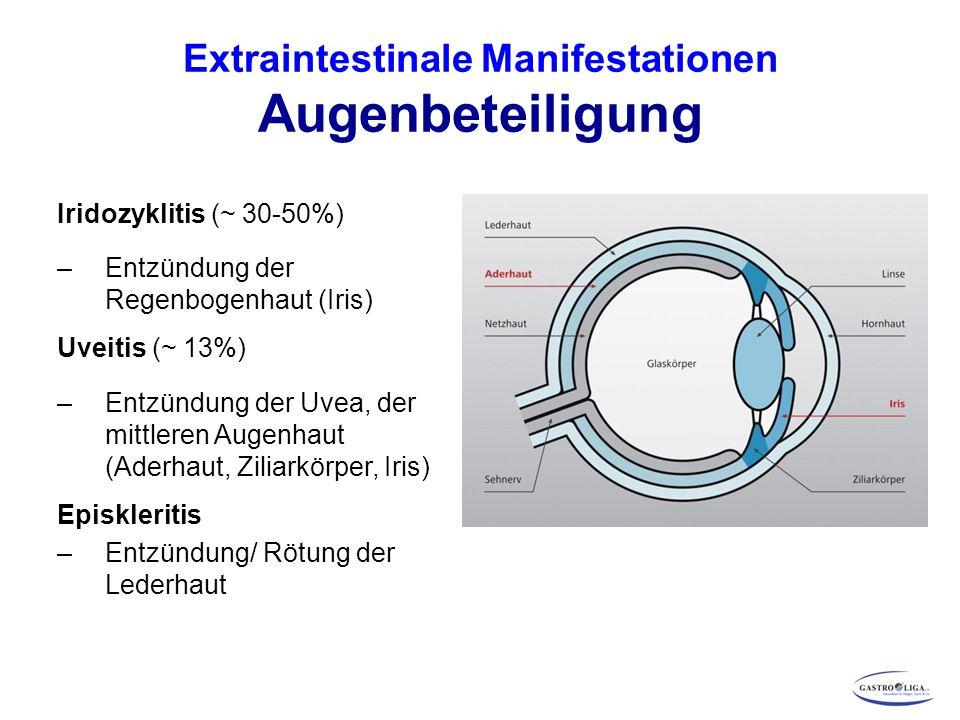 Extraintestinale Manifestationen Augenbeteiligung Iridozyklitis (~ 30-50%) – Entzündung der Regenbogenhaut (Iris) Uveitis (~ 13%) – Entzündung der Uve