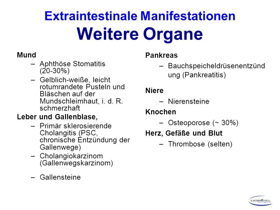 Extraintestinale Manifestationen Weitere Organe Mund –Aphthöse Stomatitis (20-30%) –Gelblich-weiße, leicht rotumrandete Pusteln und Bläschen auf der M