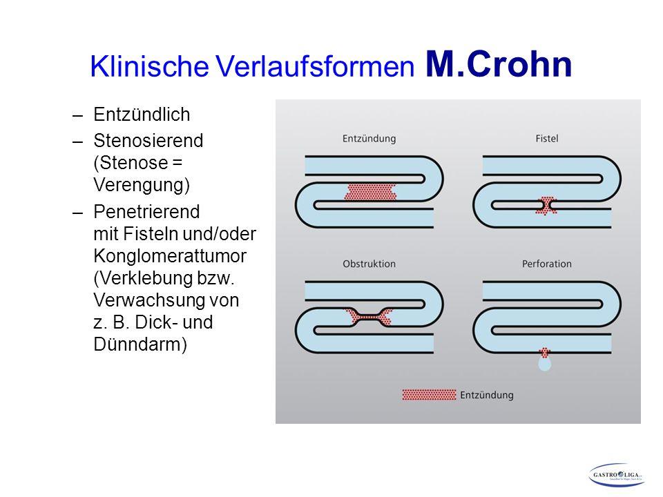 Klinische Verlaufsformen M.Crohn –Entzündlich –Stenosierend (Stenose = Verengung) –Penetrierend mit Fisteln und/oder Konglomerattumor (Verklebung bzw.