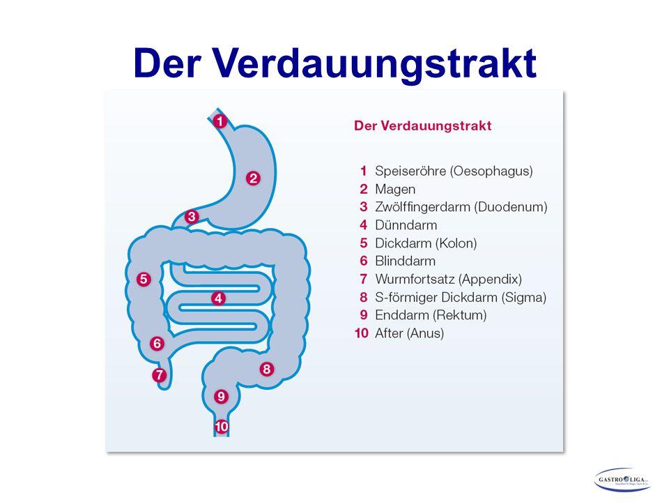 Crohn s Disease Activity Index (CDAI) Nach Best* 8 Variablen, u.