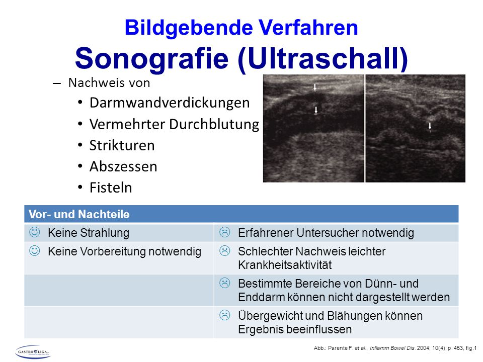 Bildgebende Verfahren Sonografie (Ultraschall) – Nachweis von Darmwandverdickungen Vermehrter Durchblutung Strikturen Abszessen Fisteln Abb.: Parente F.