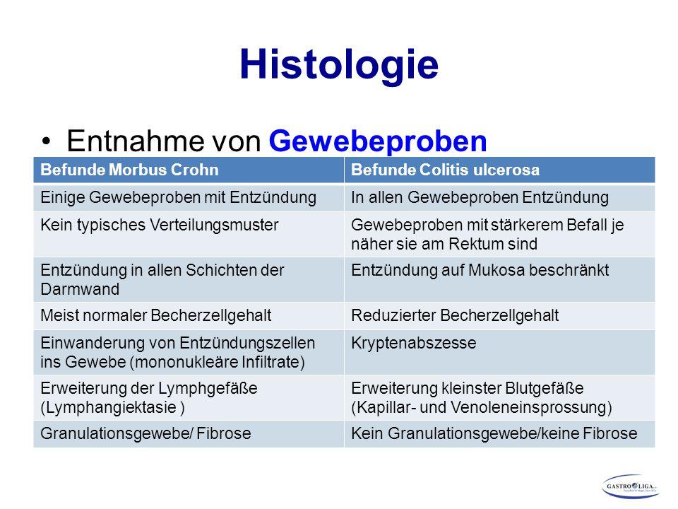 Histologie Entnahme von Gewebeproben (Biopsien), in der Regel während Endoskopie, und ihre mikroskopische Beurteilung Befunde Morbus CrohnBefunde Coli