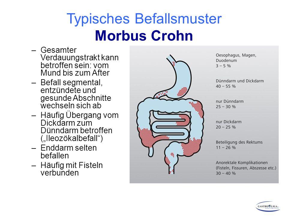"""Ergebnisse mit neuen """"Biologika bei CED MechanismusMorbus CrohnColitis ulcerosa Golimumab Anti-TNF+ Vedolizumab Anti-Integrin a4ß7 (+)+ Ustekinumab Anti-IL12/23 p40+ (nach anti-TNF- Versagen) Secukinumab Anti-IL17Nachteilig."""
