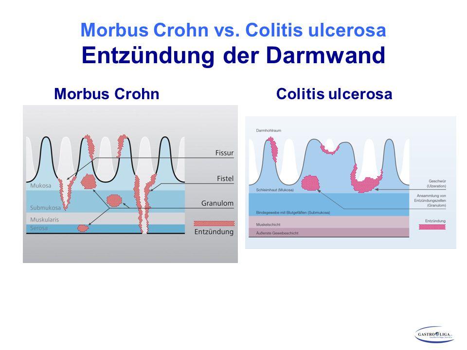 Komplikationen Morbus Crohn Engstellen (Stenosen, Dünndarmstrikturen und Obstruktion) Fisteln Abszesse Chronischer Blutverlust Perforation Erhöhtes Krebsrisiko bei langjährigem, schwerem Befall insbes.