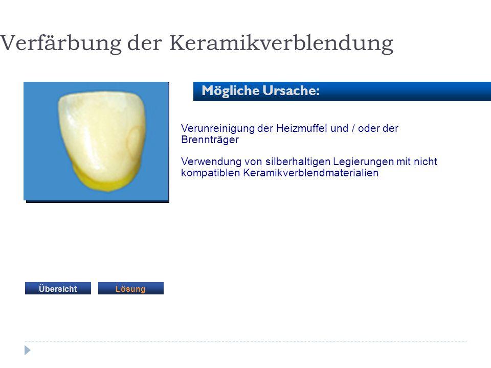 Verunreinigung der Heizmuffel und / oder der Brennträger Verwendung von silberhaltigen Legierungen mit nicht kompatiblen Keramikverblendmaterialien Ve