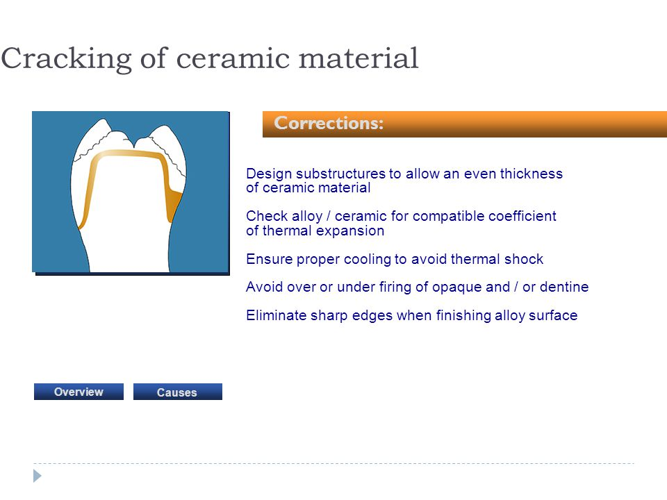 Design substructures to allow an even thickness of ceramic material Check alloy / ceramic for compatible coefficient of thermal expansion Ensure prope