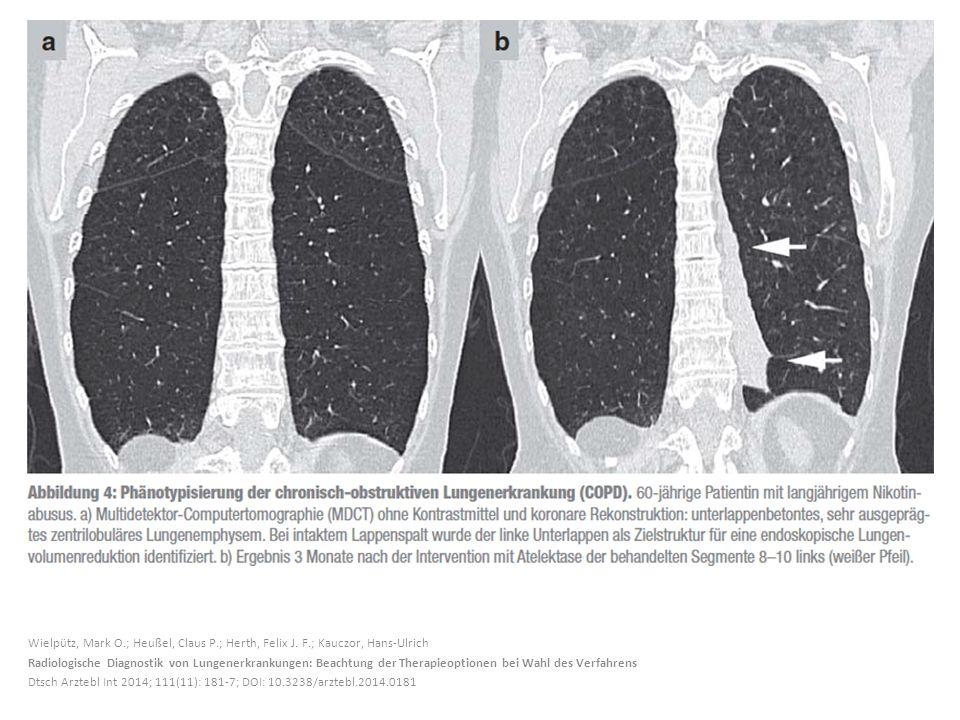 Wielpütz, Mark O.; Heußel, Claus P.; Herth, Felix J. F.; Kauczor, Hans-Ulrich Radiologische Diagnostik von Lungenerkrankungen: Beachtung der Therapieo