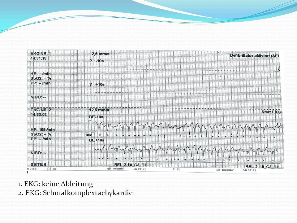 1. EKG: keine Ableitung 2. EKG: Schmalkomplextachykardie