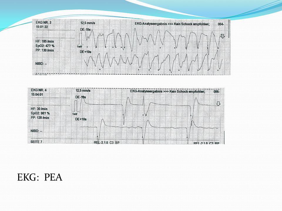 EKG: PEA