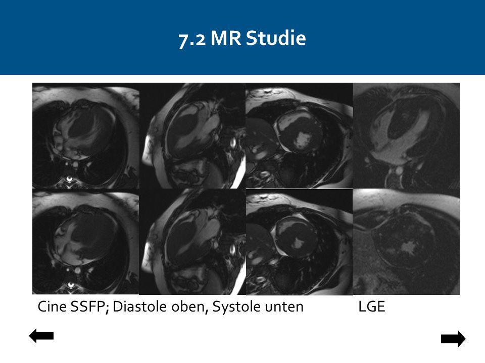 7.2 MR Studie Cine SSFP; Diastole oben, Systole untenLGE