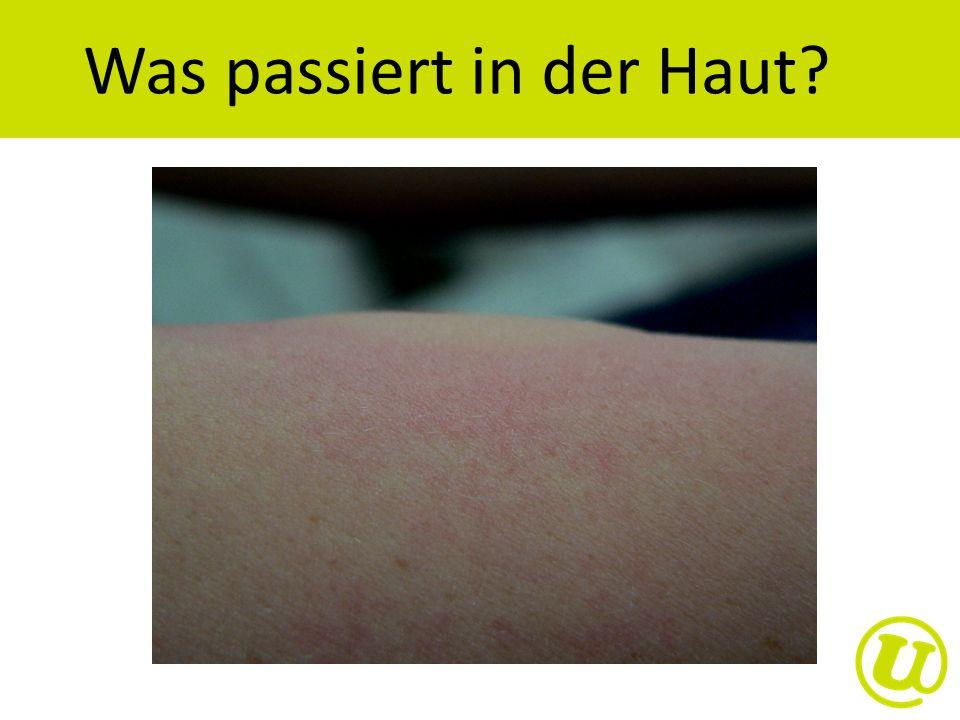 Was passiert in der Haut?
