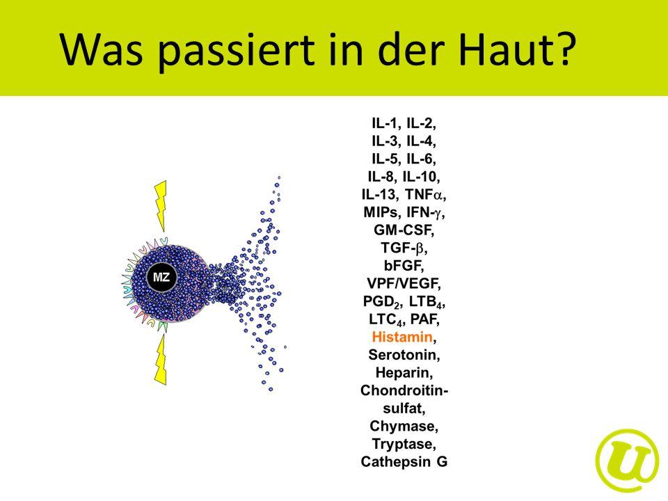 Auslöser http://www.kkr.it/de/referenzen.htm?menID=2433,0&grp=1&p=2 © Rolf Neeser http://vitagate.ch/de/schoenheit/hautpflege/juckreiz