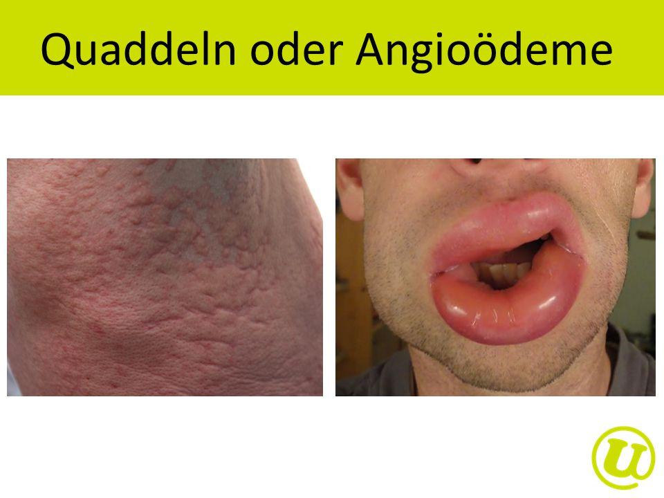 Quaddeln oder Angioödeme