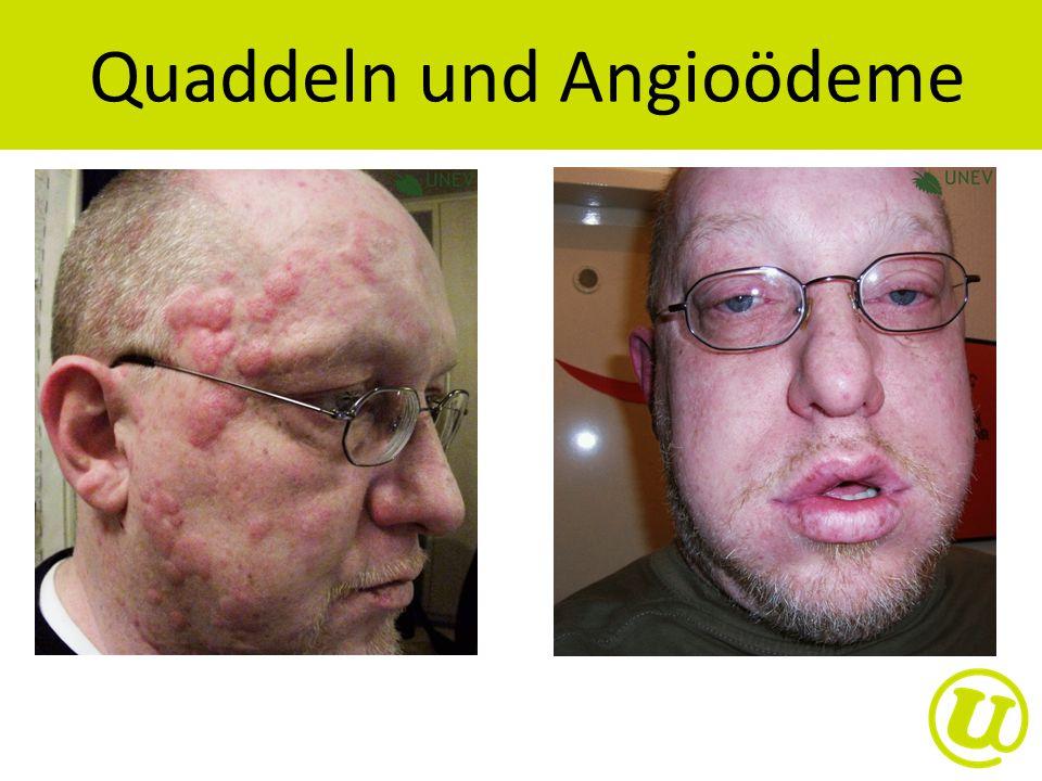 Quaddeln und Angioödeme
