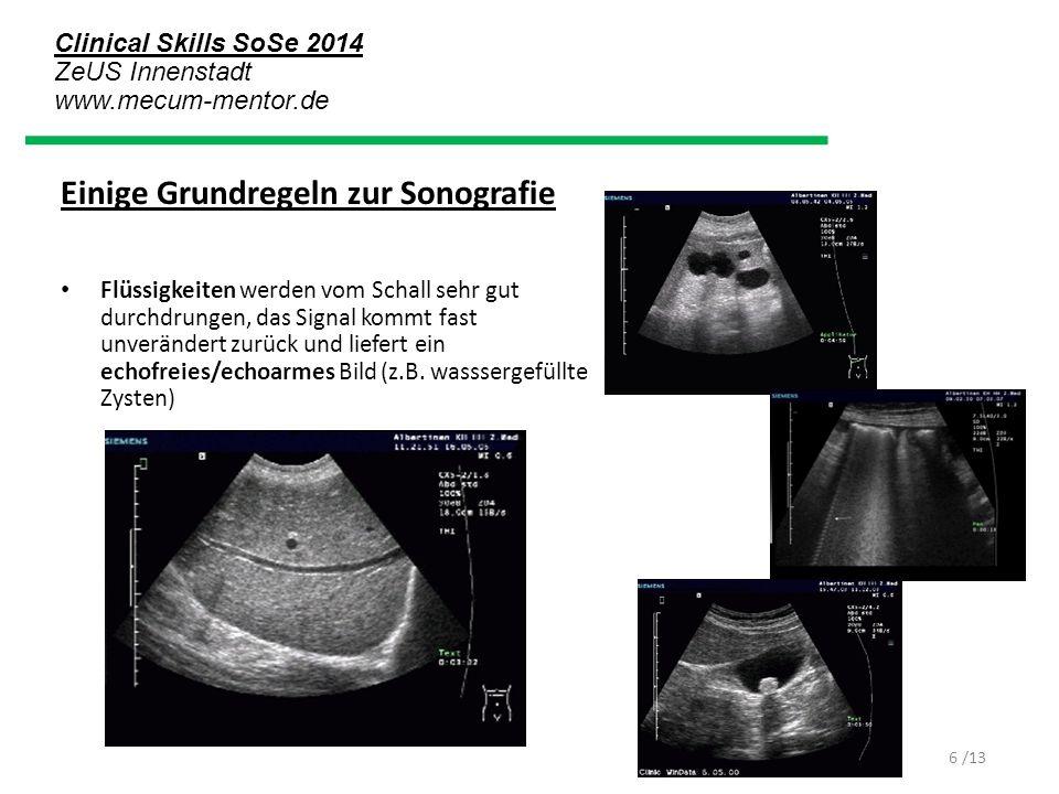 Clinical Skills SoSe 2014 ZeUS Innenstadt www.mecum-mentor.de /13 Einige Grundregeln zur Sonografie Flüssigkeiten werden vom Schall sehr gut durchdrun