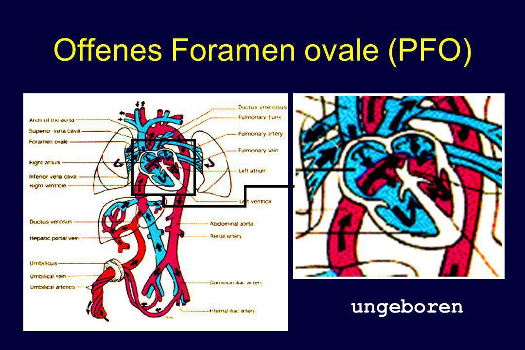 Offenes Foramen ovale (PFO) ungeboren