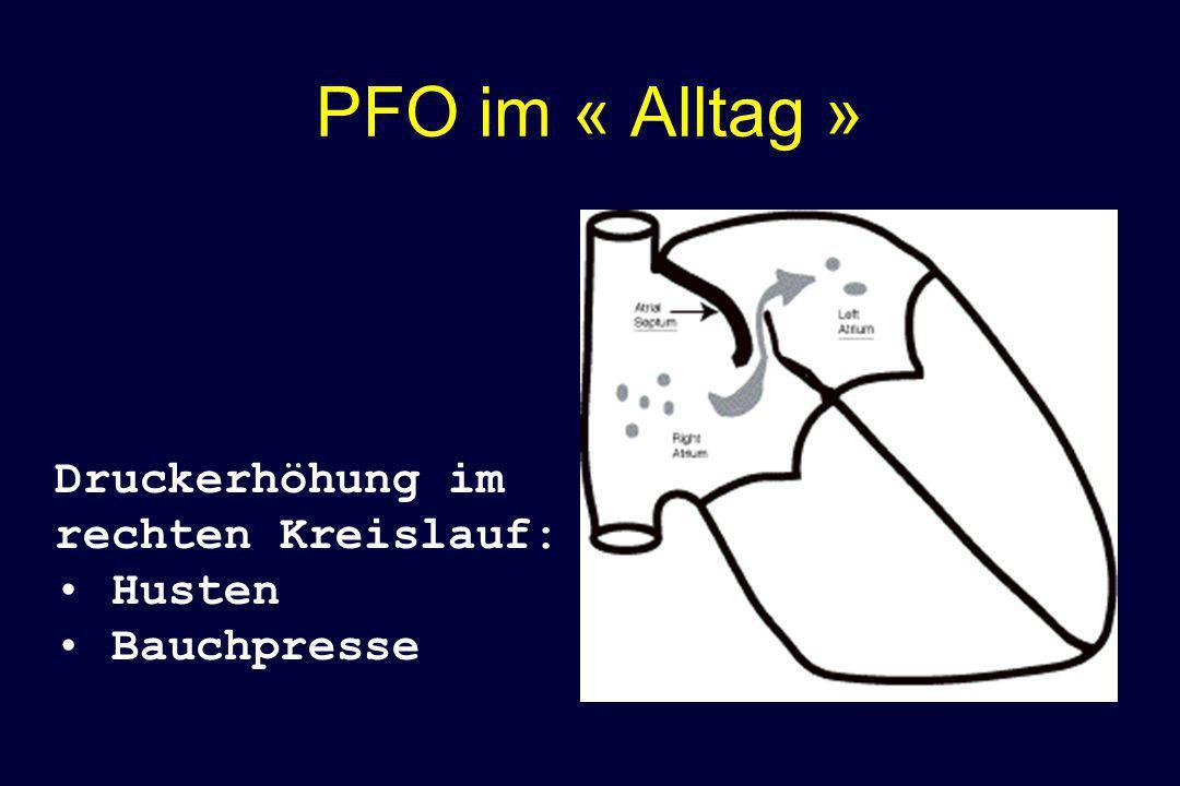 PFO im « Alltag » Druckerhöhung im rechten Kreislauf: Husten Bauchpresse