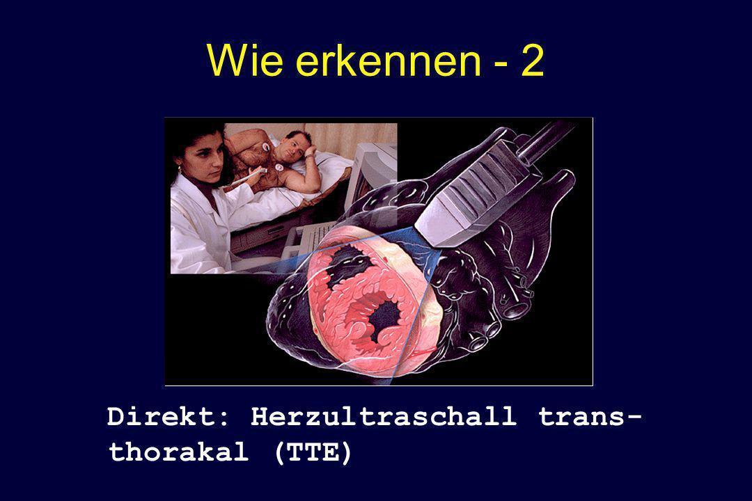 Wie erkennen - 2 Direkt: Herzultraschall trans- thorakal (TTE)