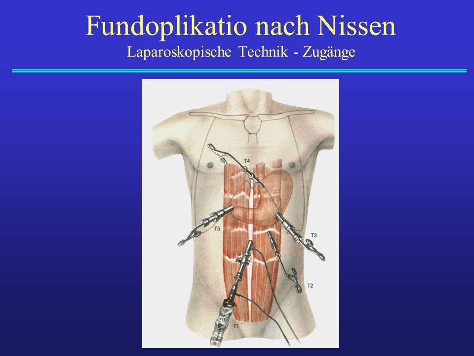Fundoplikatio nach Nissen Laparoskopische Technik - Zugänge