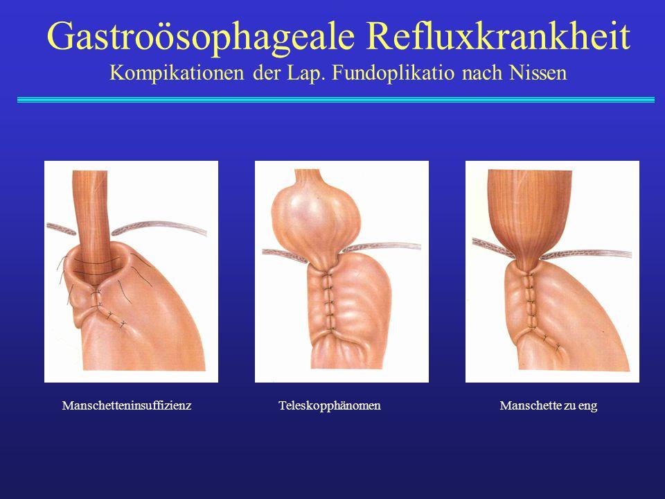 ManschetteninsuffizienzTeleskopphänomenManschette zu eng Gastroösophageale Refluxkrankheit Kompikationen der Lap. Fundoplikatio nach Nissen