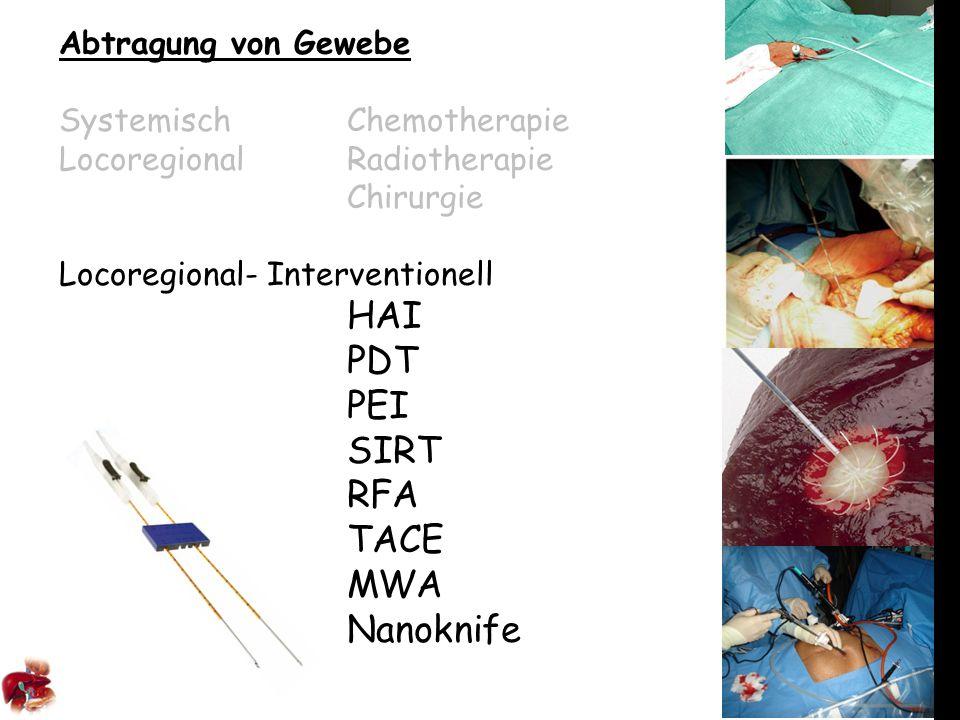 Abtragung von Gewebe SystemischChemotherapie LocoregionalRadiotherapie Chirurgie Locoregional- Interventionell HAI PDT PEI SIRT RFA TACE MWA Nanoknife