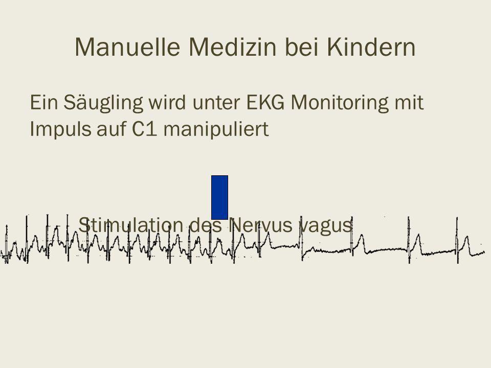 Manuelle Medizin bei Kindern Ein Säugling wird unter EKG Monitoring mit Impuls auf C1 manipuliert Stimulation des Nervus vagus