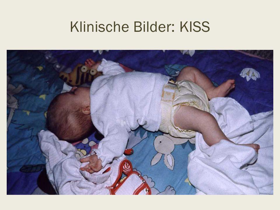 """KISS Pathogenese Lange dauernde intrauterine Zwangshaltung Protrahierter Geburtsverlauf Vaginale geburtshilfliche Operationen (Vakuum, Zange, """"Kristellern ) Sectio (Entwicklung des Kindes durch den unelastischen Pfannenstielschnitt)"""
