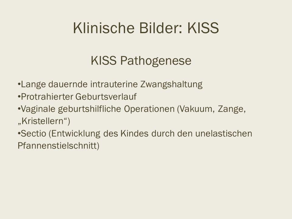 """KISS Pathogenese Lange dauernde intrauterine Zwangshaltung Protrahierter Geburtsverlauf Vaginale geburtshilfliche Operationen (Vakuum, Zange, """"Kristel"""