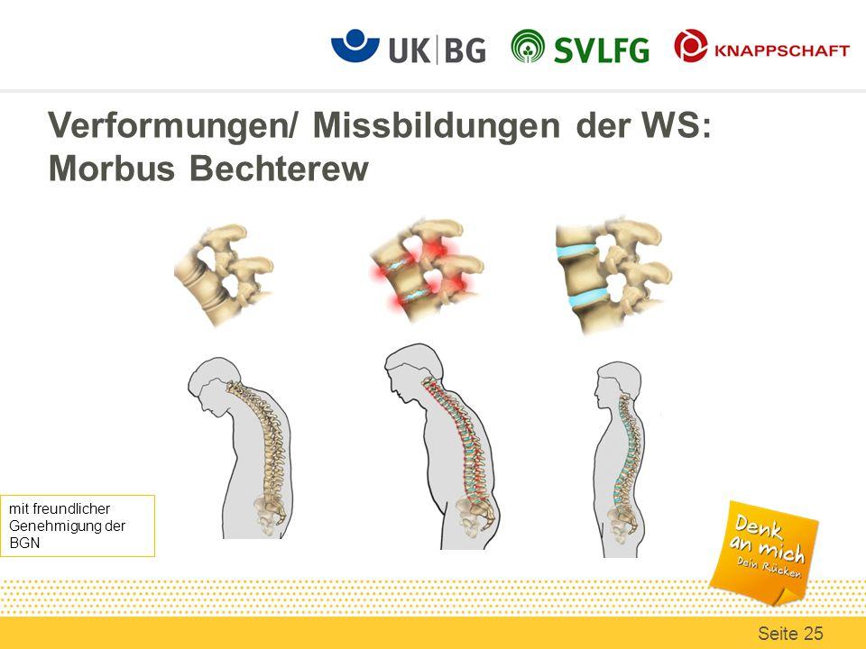Verformungen/ Missbildungen der WS: Morbus Bechterew mit freundlicher Genehmigung der BGN Seite 25