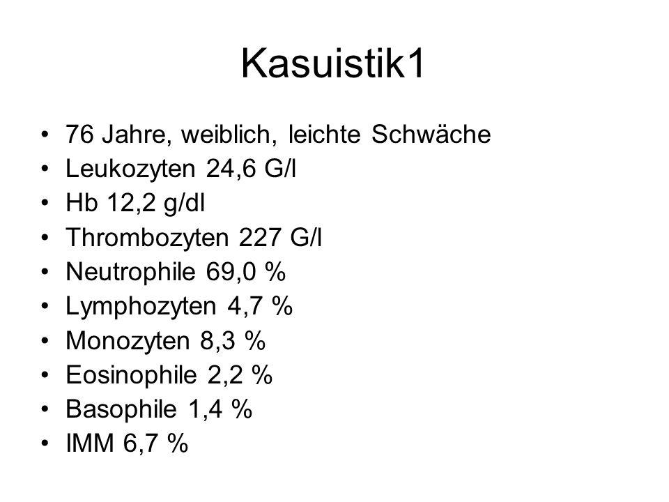 Kasuistik1 76 Jahre, weiblich, leichte Schwäche Leukozyten 24,6 G/l Hb 12,2 g/dl Thrombozyten 227 G/l Neutrophile 69,0 % Lymphozyten 4,7 % Monozyten 8