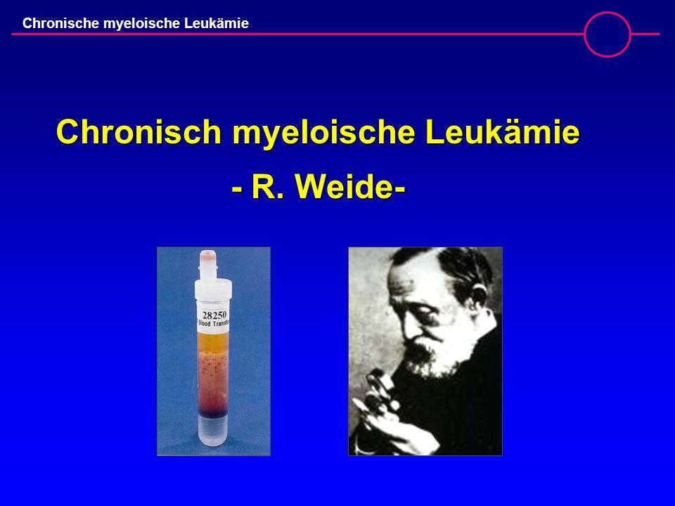 Chronische myeloische Leukämie  19 jährige Patientin, Erstvorstellung 03/05  Leukozyten: 219 G/l (NW:4-10G/l),  Thrombozyten: 1.132 G/l (NW:150-450G/l)  Milz 3 QF unter Rippenbogen