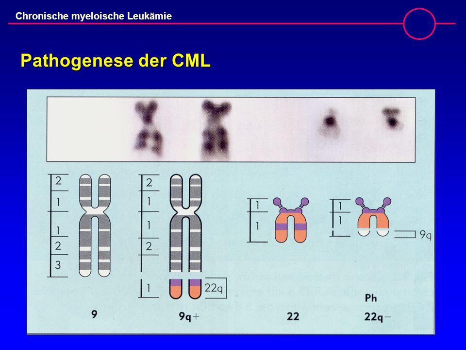 Chronische myeloische Leukämie Pathogenese der CML