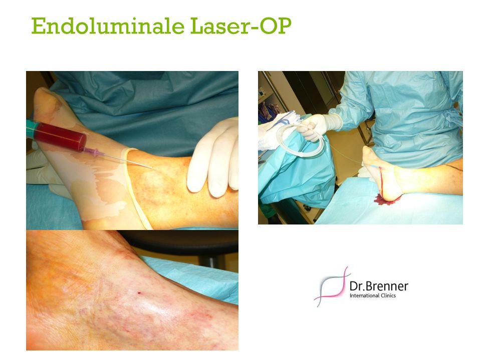 Endoluminale Laser-OP