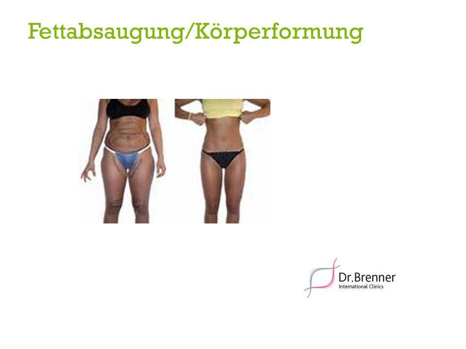 Fettabsaugung/Körperformung