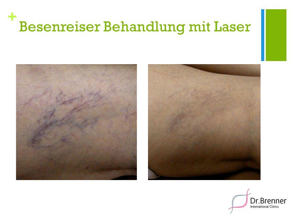 + Besenreiser Behandlung mit Laser