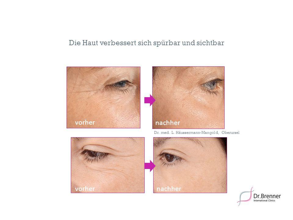 19 Die Haut verbessert sich spürbar und sichtbar nachher vorhernachher vorhernachher Dr. med. L. Häussermann-Mangold, Oberursel vorher