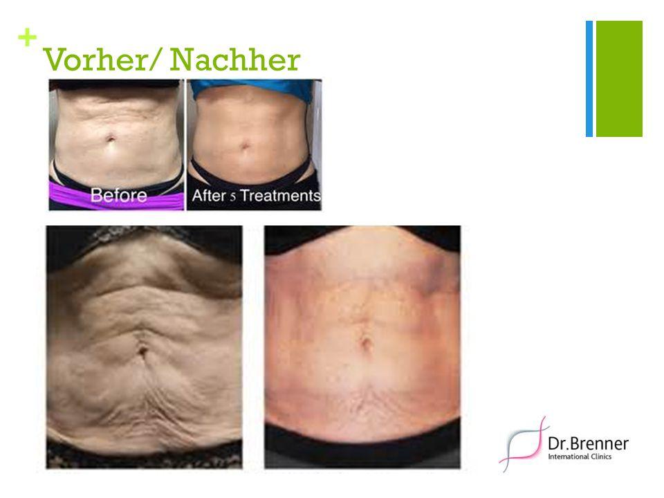 + Vorher/ Nachher