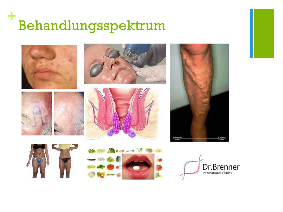 + Klassische Dermatologie Neurodermitis Allergologie Schuppenflechte Akne Chronische Erkrankungen Haarerkrankungen Hauttumoren